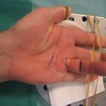 Preparazione all'intervento: incisioni