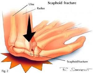 Frattura dello scafoide carpale