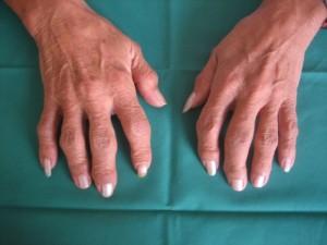 Artrosi della mano