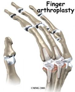 Protesi delle articolazioni metacarpo-falangee