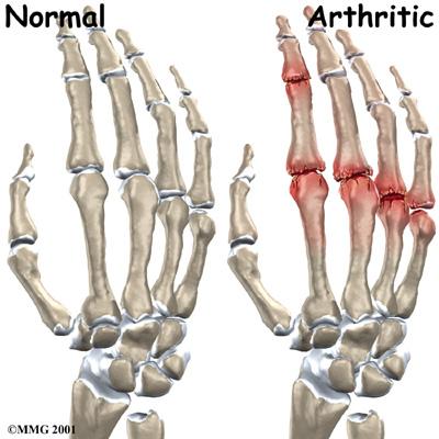 Artrosi delle dita