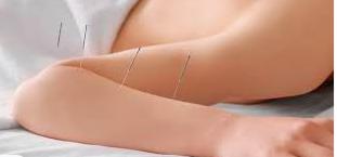 Ambulatorio di agopuntura